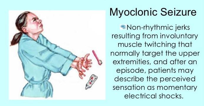 Piracetam myoclonic seizure